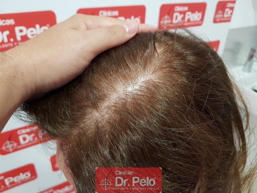 [Imagen: trasplante-capilar-mujer-dr-pelo-24.jpg]