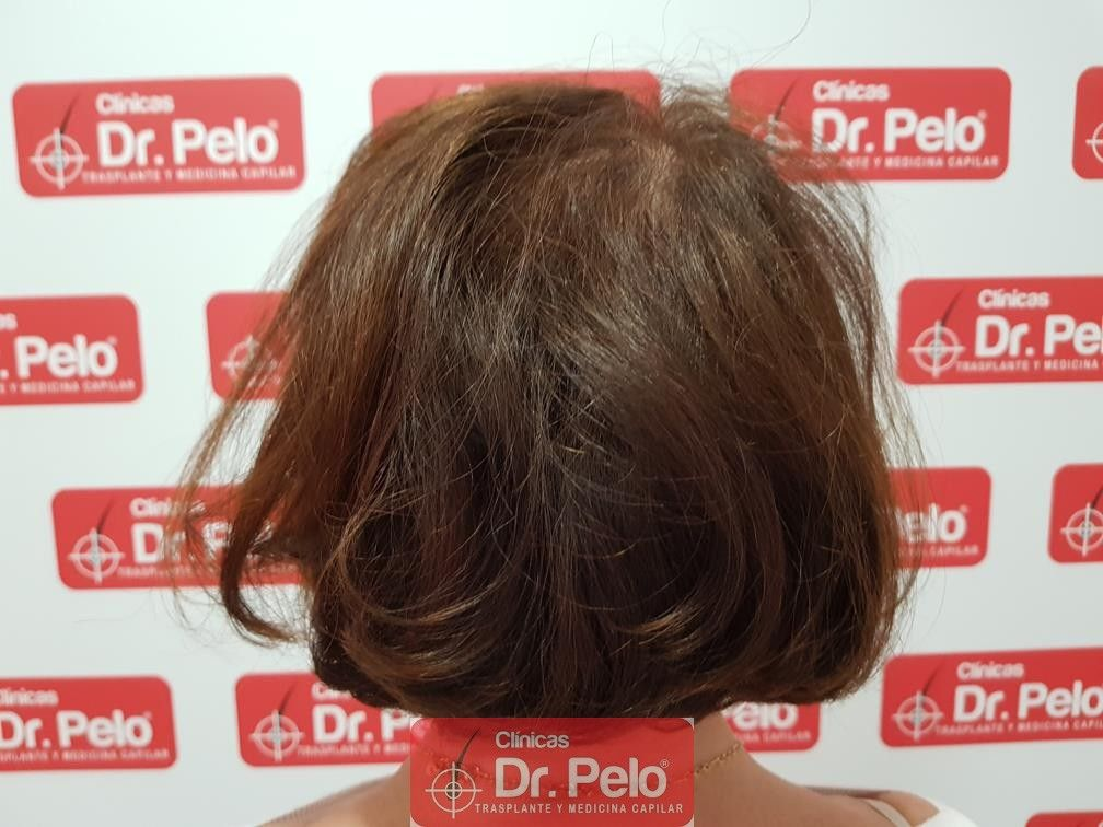 [Imagen: trasplante-capilar-mujer-dr-pelo-25.jpg]
