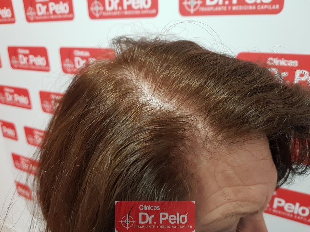 [Imagen: trasplante-capilar-mujer-dr-pelo-27.jpg]