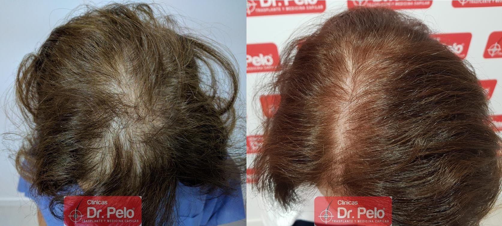 [Imagen: trasplante-capilar-mujer-dr-pelo-28.jpg]