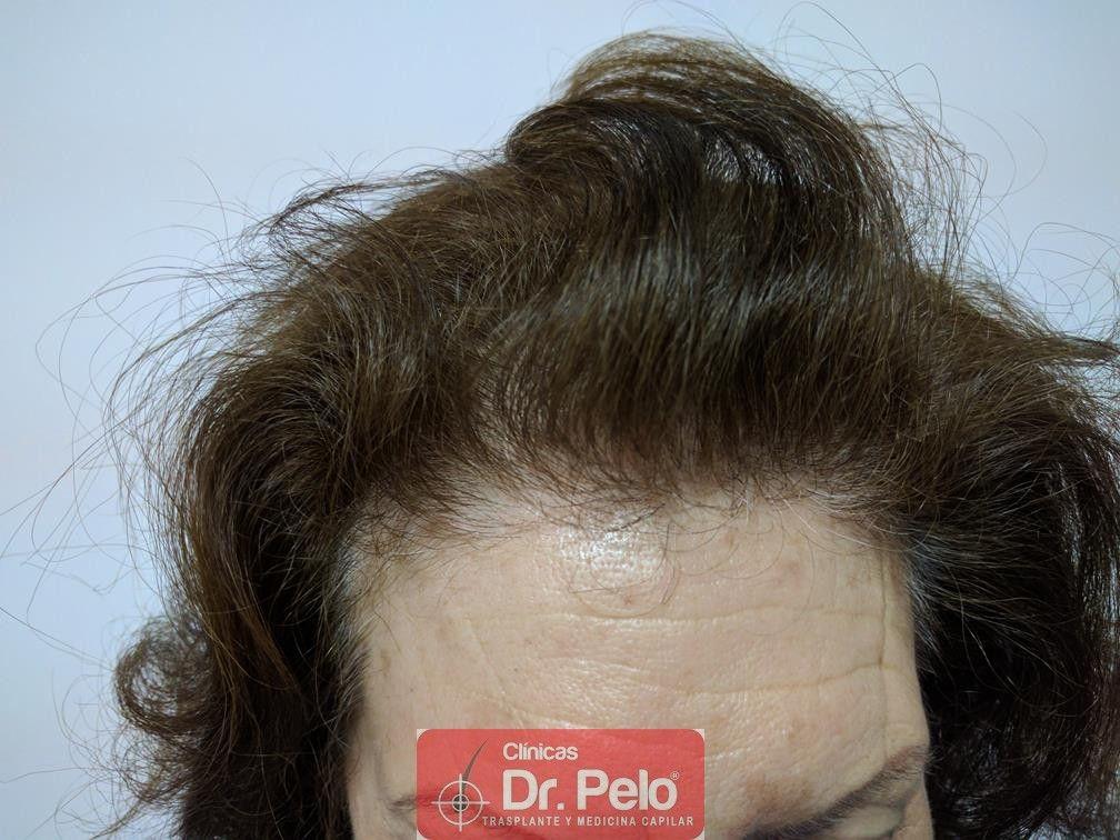 [Imagen: trasplante-capilar-mujer-dr-pelo-7.jpg]