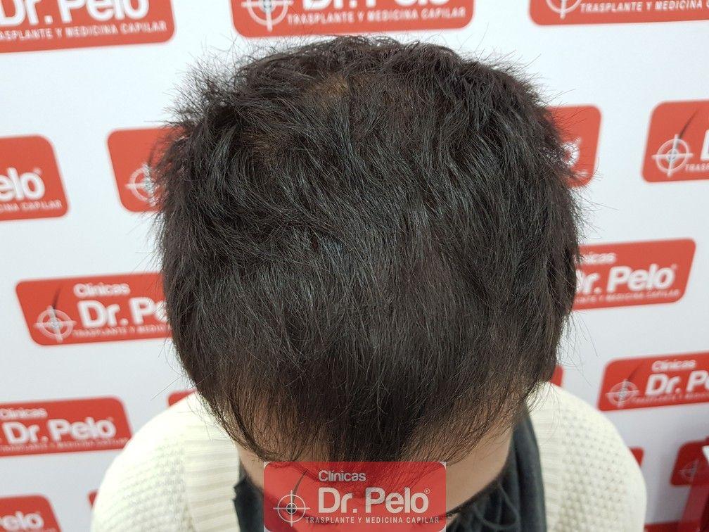 [Imagen: injerto-capilar-joven-dr-pelo-10.jpg]