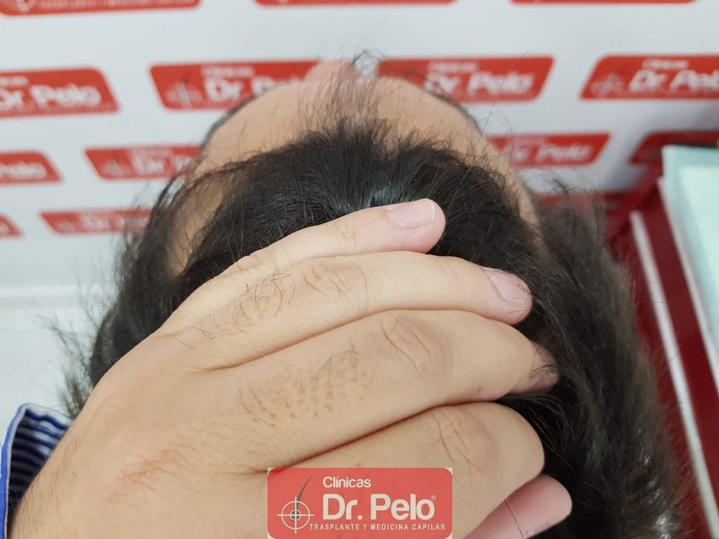 [Imagen: injerto-capilar-joven-dr-pelo-14.jpg]