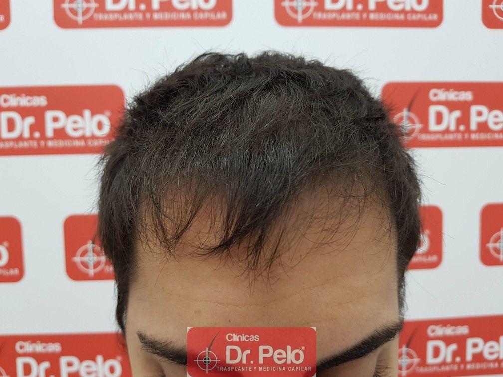 [Imagen: injerto-capilar-joven-dr-pelo-9.jpg]