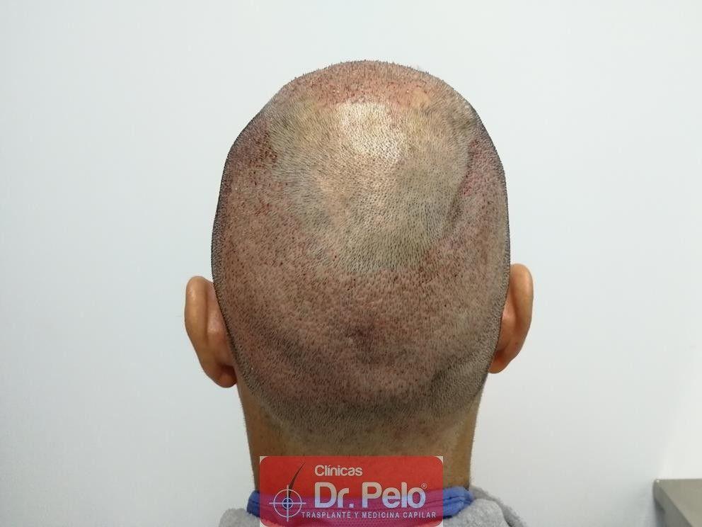 [Imagen: injerto-capilar-fue-dr-pelo-27.jpg]
