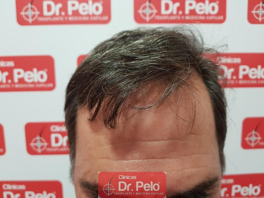 [Imagen: injerto-capilar-fue-dr-pelo-28.jpg]