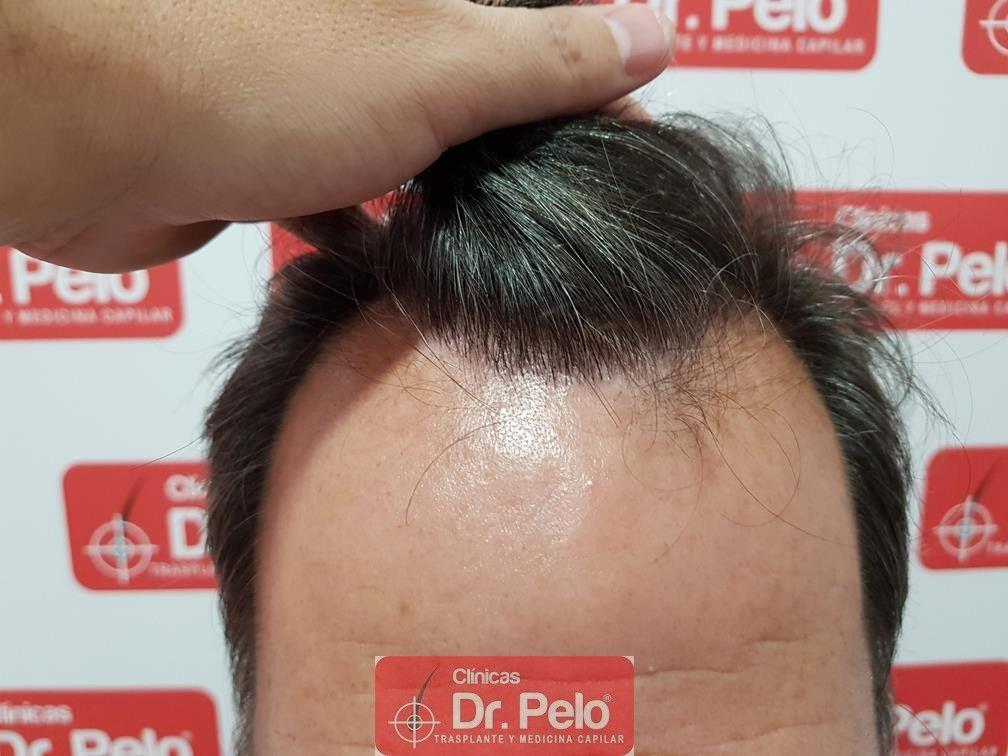 [Imagen: injerto-capilar-fue-dr-pelo-29.jpg]
