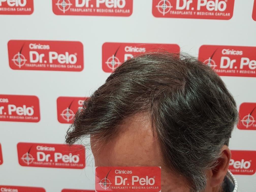 [Imagen: injerto-capilar-fue-dr-pelo-32.jpg]