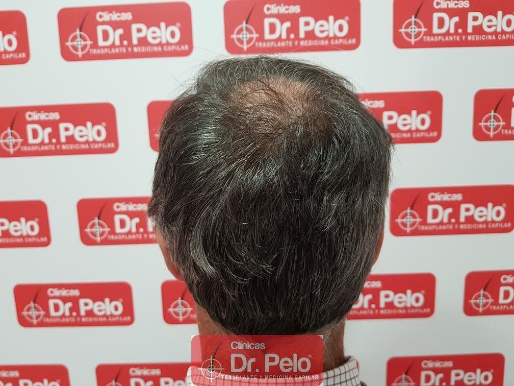 [Imagen: injerto-capilar-fue-dr-pelo-34.jpg]