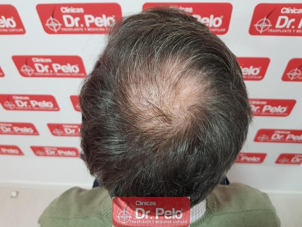 [Imagen: injerto-capilar-fue-dr-pelo-35.jpg]