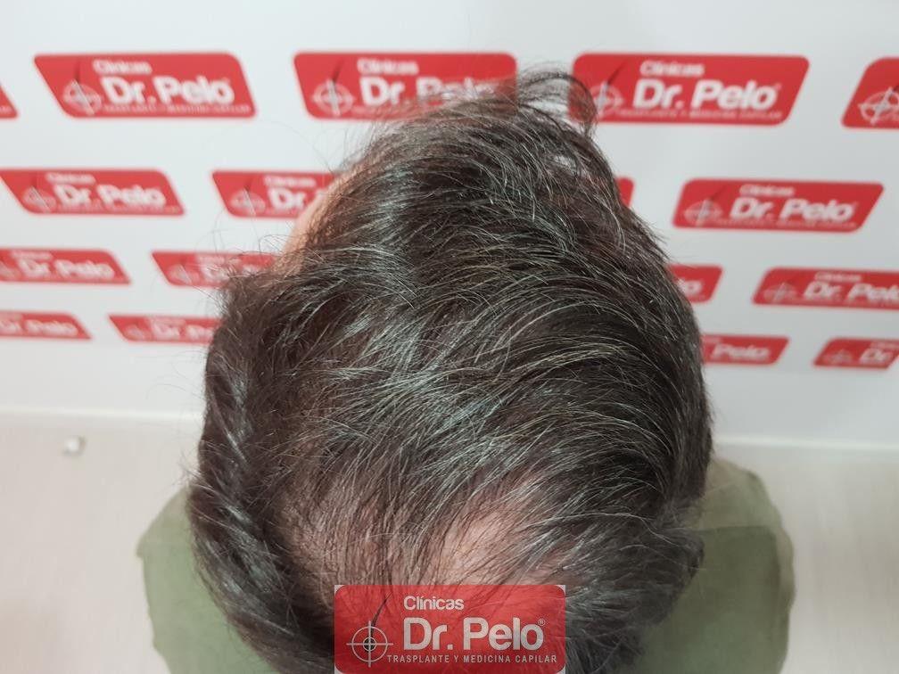 [Imagen: injerto-capilar-fue-dr-pelo-36.jpg]