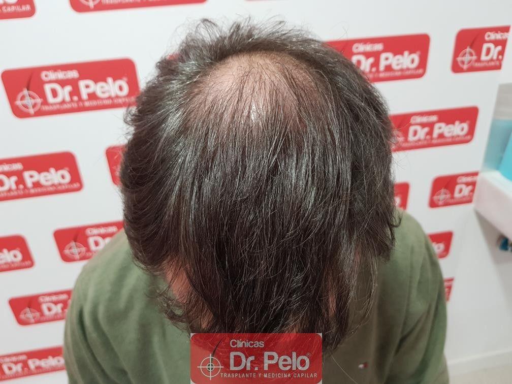 [Imagen: injerto-capilar-fue-dr-pelo-39.jpg]