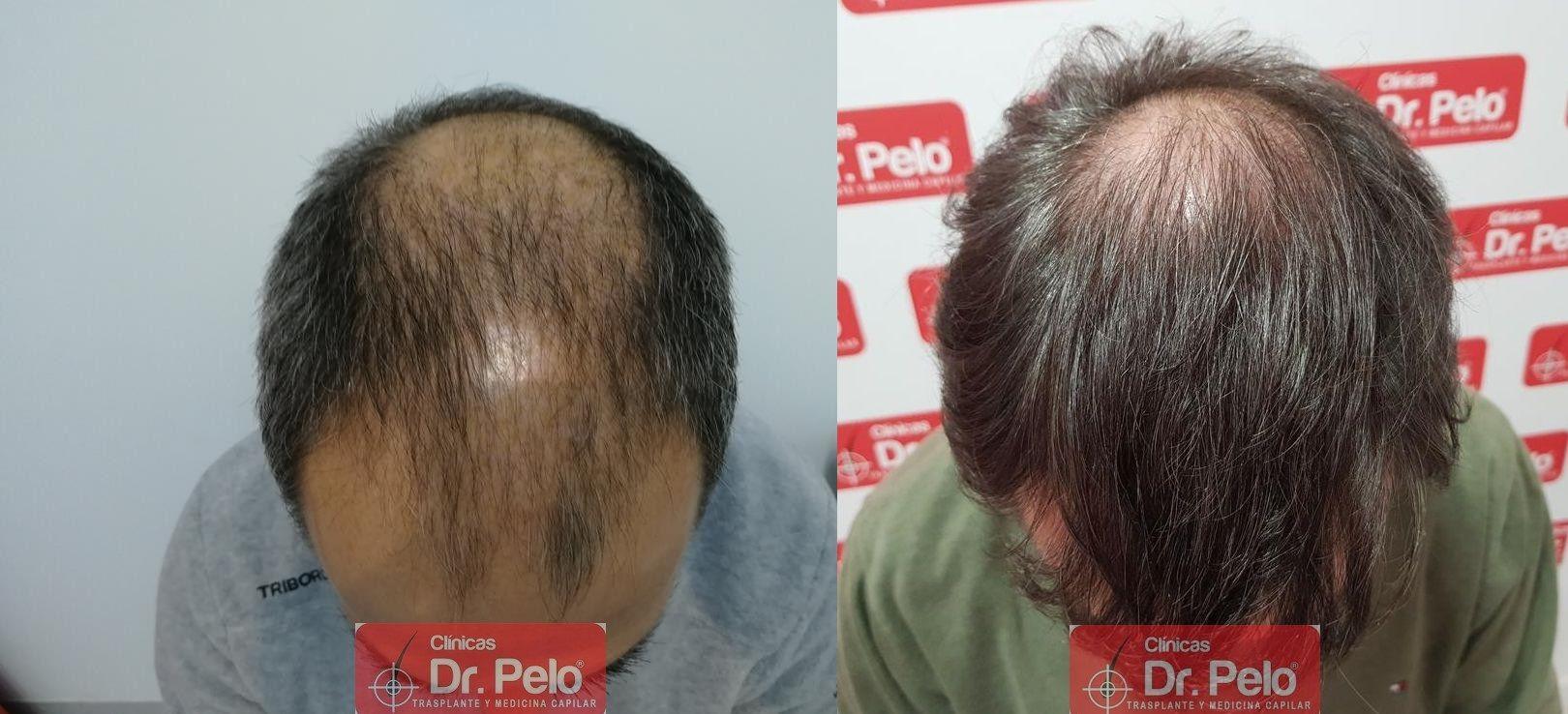 [Imagen: injerto-capilar-fue-dr-pelo-42.jpg]