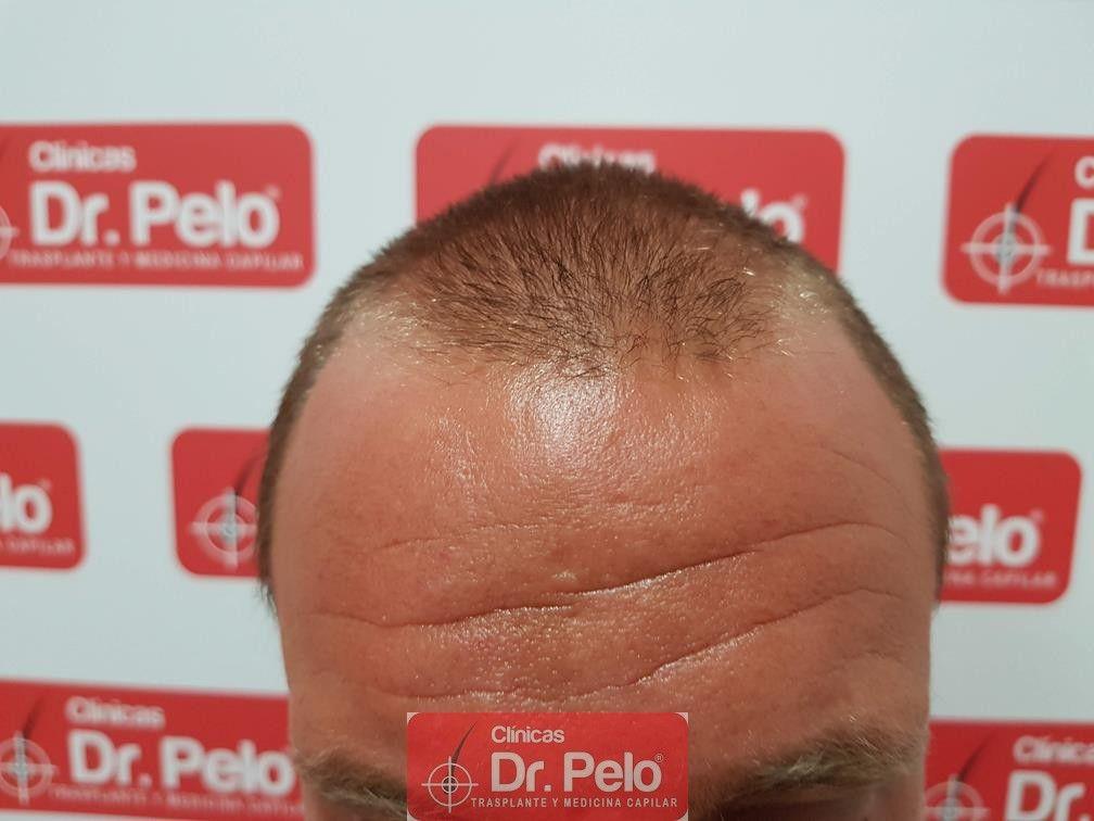 [Imagen: tratamiento-capilar-dr-pelo-10.jpg]