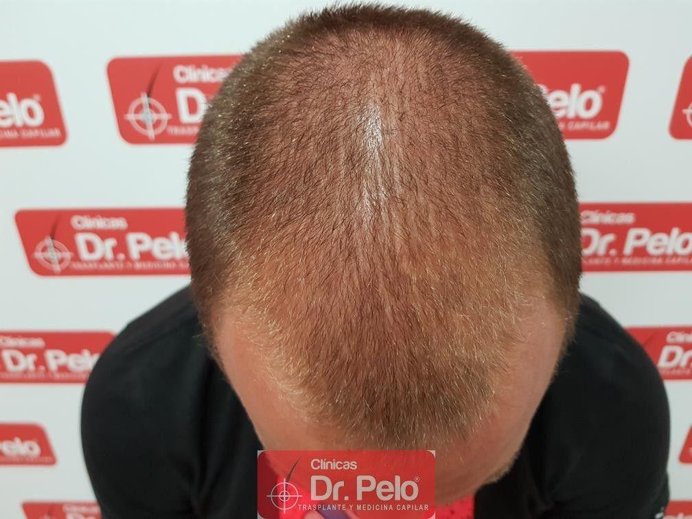 [Imagen: tratamiento-capilar-dr-pelo-11.jpg]