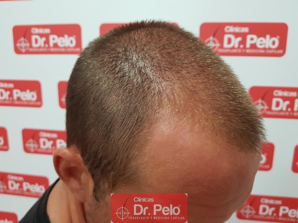 [Imagen: tratamiento-capilar-dr-pelo-16.jpg]