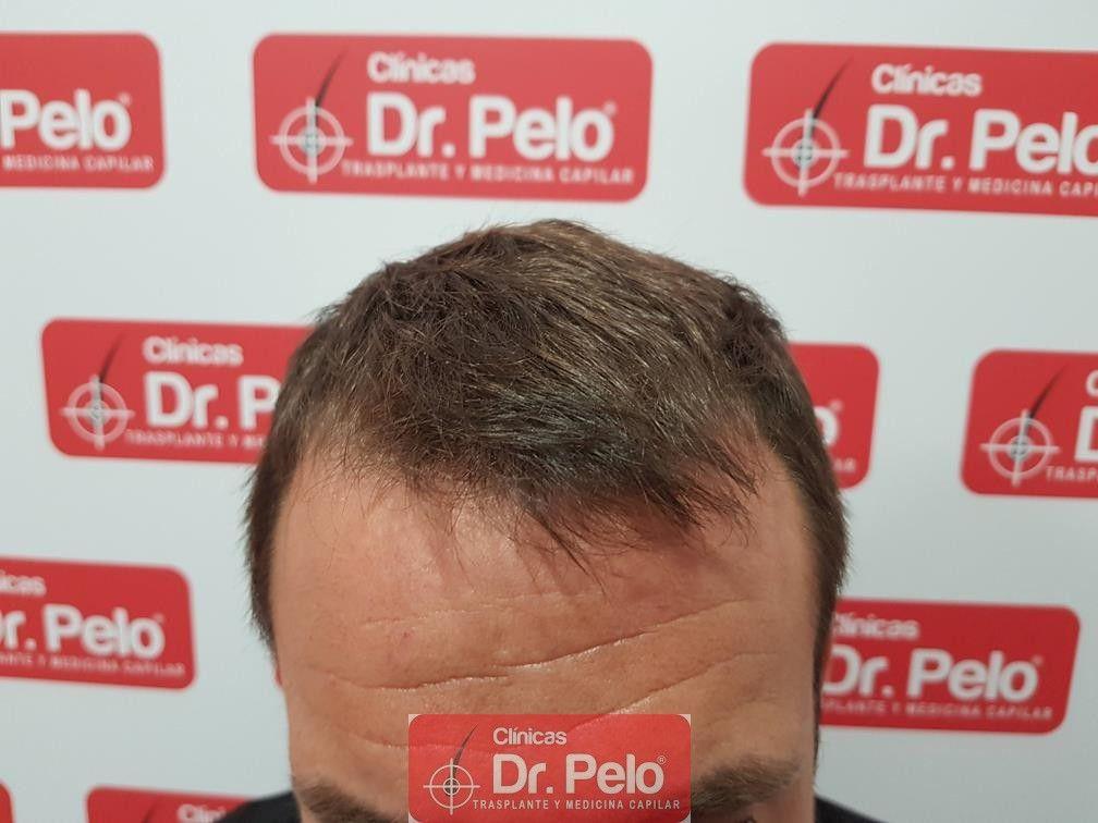 [Imagen: tratamiento-capilar-dr-pelo-17.jpg]