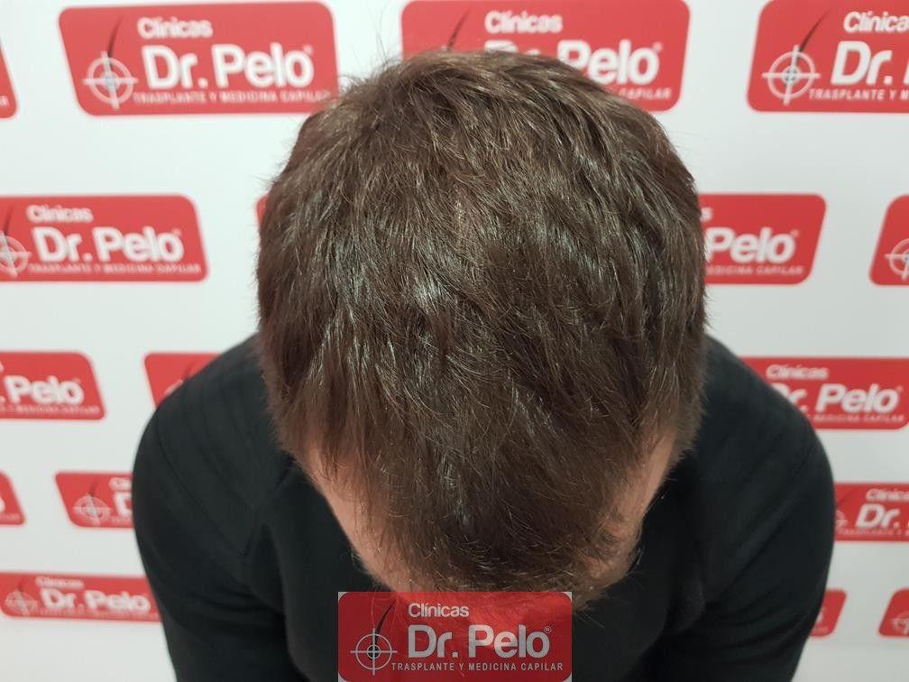 [Imagen: tratamiento-capilar-dr-pelo-18.jpg]
