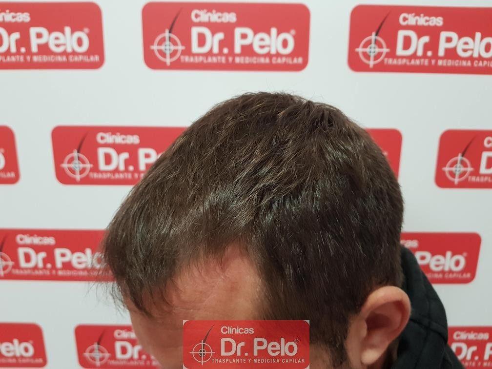[Imagen: tratamiento-capilar-dr-pelo-19.jpg]