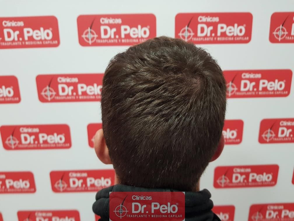 [Imagen: tratamiento-capilar-dr-pelo-20.jpg]