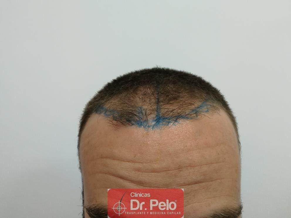 [Imagen: injerto-capilar-fue-dr-pelo-30.jpg]