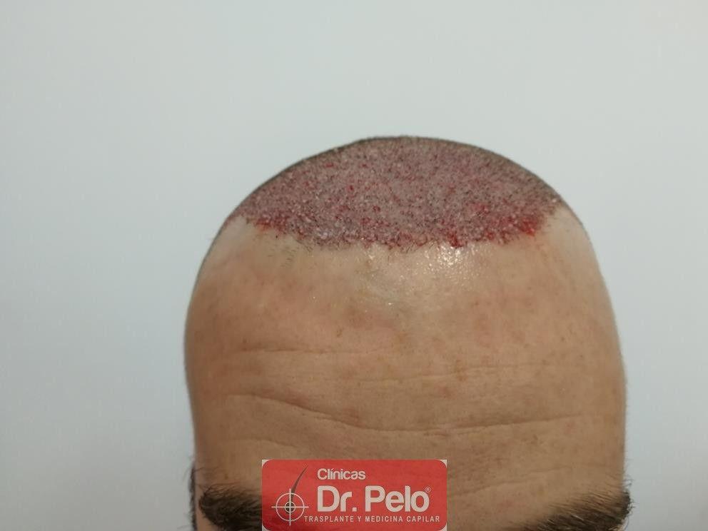[Imagen: injerto-capilar-fue-dr-pelo-37.jpg]