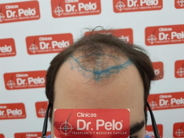 [Imagen: injerto-capilar-fue-dr-pelo.jpg]