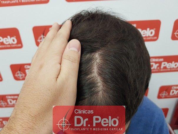 [Imagen: injerto-capilar-fue-dr-pelo_10.jpg]