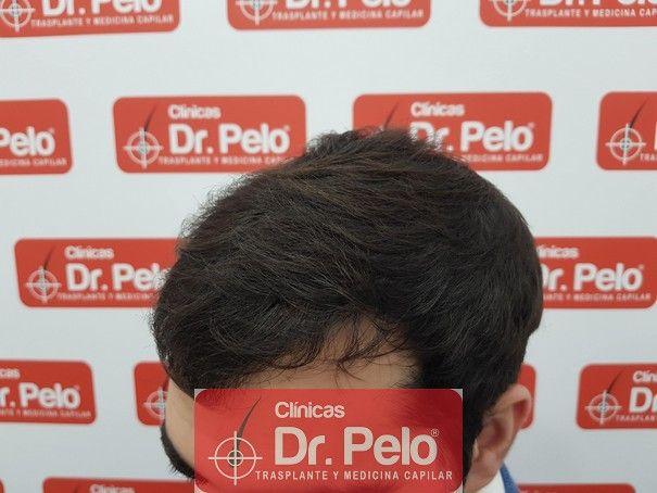[Imagen: injerto-capilar-fue-dr-pelo_11.jpg]
