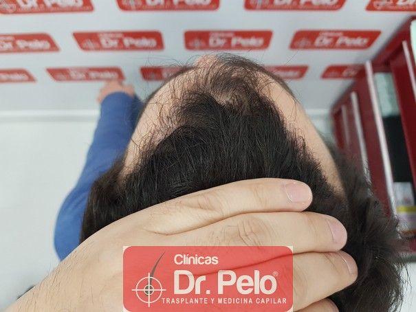 [Imagen: injerto-capilar-fue-dr-pelo_13.jpg]