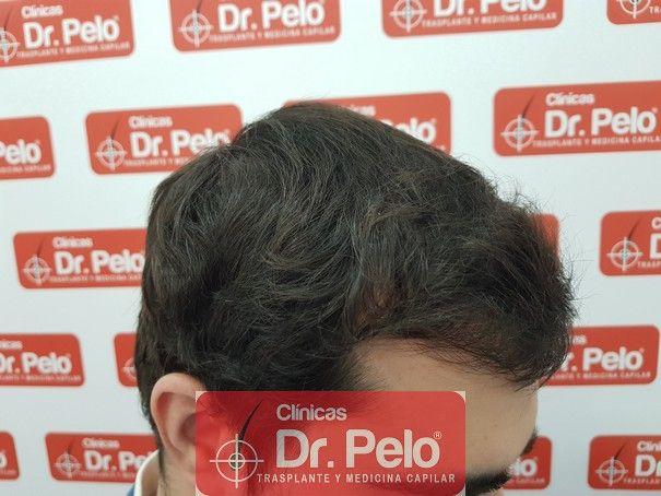 [Imagen: injerto-capilar-fue-dr-pelo_14.jpg]
