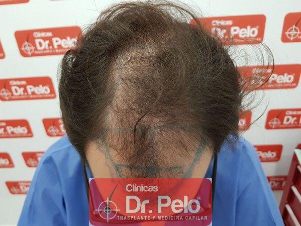 [Imagen: injerto-capilar-fue-dr-pelo_2.jpg]