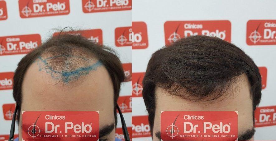 [Imagen: injerto-capilar-fue-dr-pelo_20.jpg]