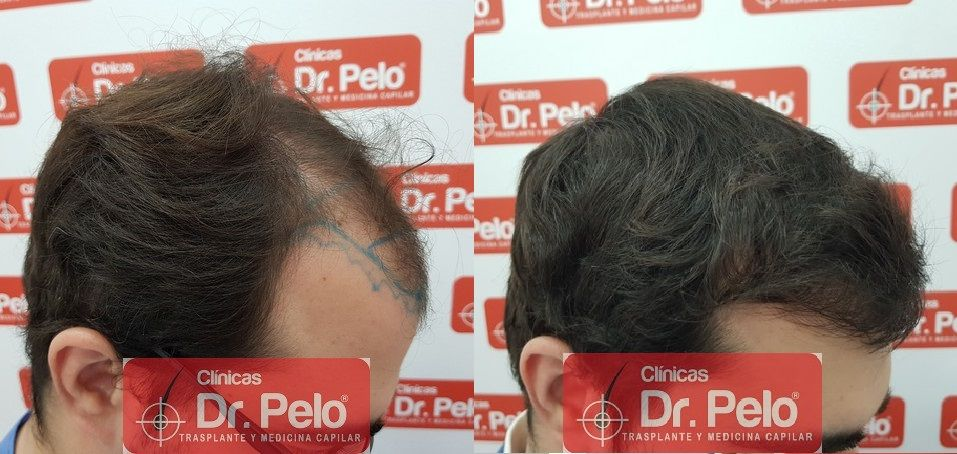 [Imagen: injerto-capilar-fue-dr-pelo_23.jpg]