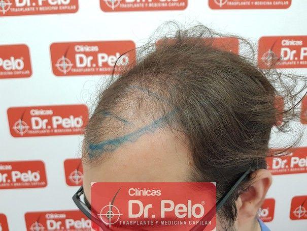 [Imagen: injerto-capilar-fue-dr-pelo_3.jpg]