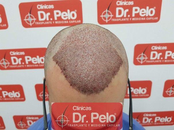 [Imagen: injerto-capilar-fue-dr-pelo_5.jpg]