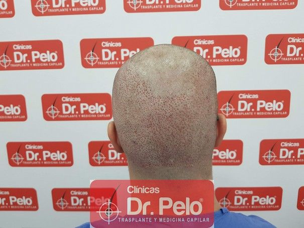 [Imagen: injerto-capilar-fue-dr-pelo_6.jpg]
