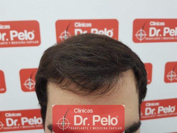 [Imagen: injerto-capilar-fue-dr-pelo_7.jpg]