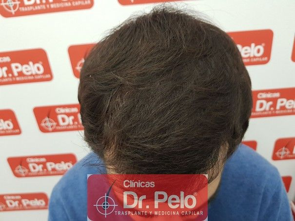 [Imagen: injerto-capilar-fue-dr-pelo_9.jpg]