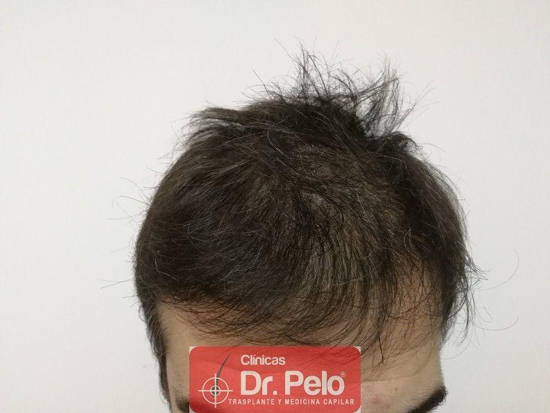 [Imagen: tratamiento-capilar-dr-pelo-1.jpg]