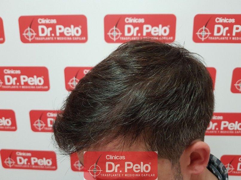 [Imagen: tratamiento-capilar-dr-pelo_11-1.jpg]