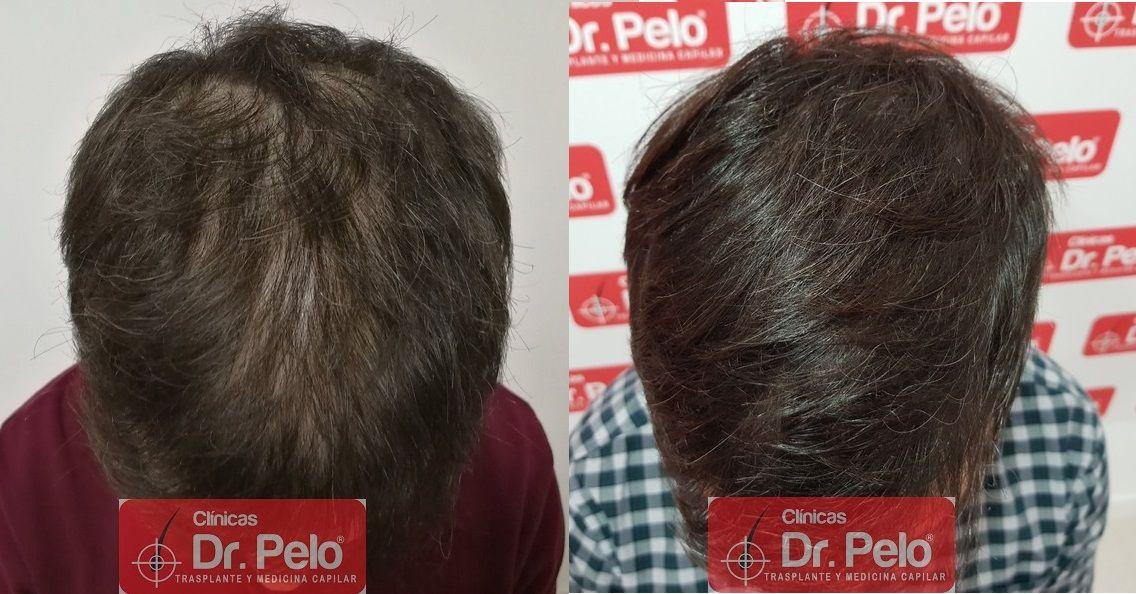 [Imagen: tratamiento-capilar-dr-pelo_21.jpg]