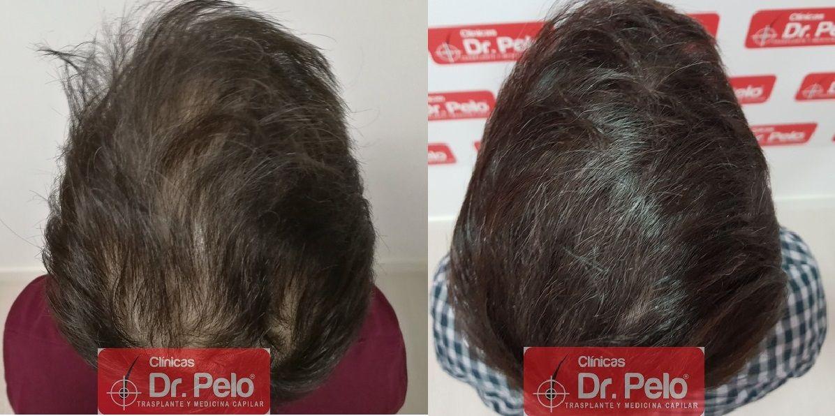 [Imagen: tratamiento-capilar-dr-pelo_23.jpg]