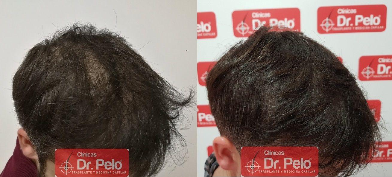 [Imagen: tratamiento-capilar-dr-pelo_24.jpg]