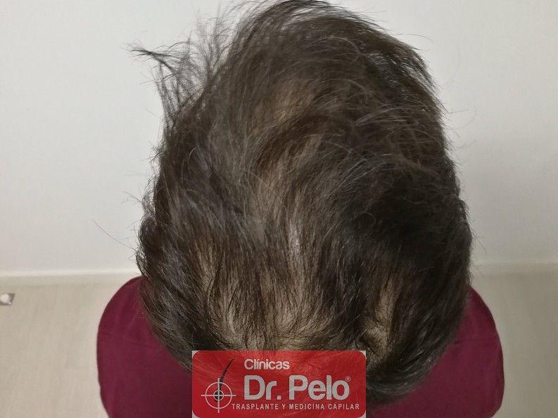 [Imagen: tratamiento-capilar-dr-pelo_6-1.jpg]