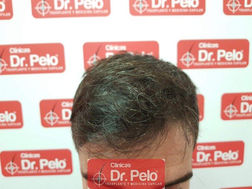 [Imagen: tratamiento-capilar-dr-pelo_8-1.jpg]