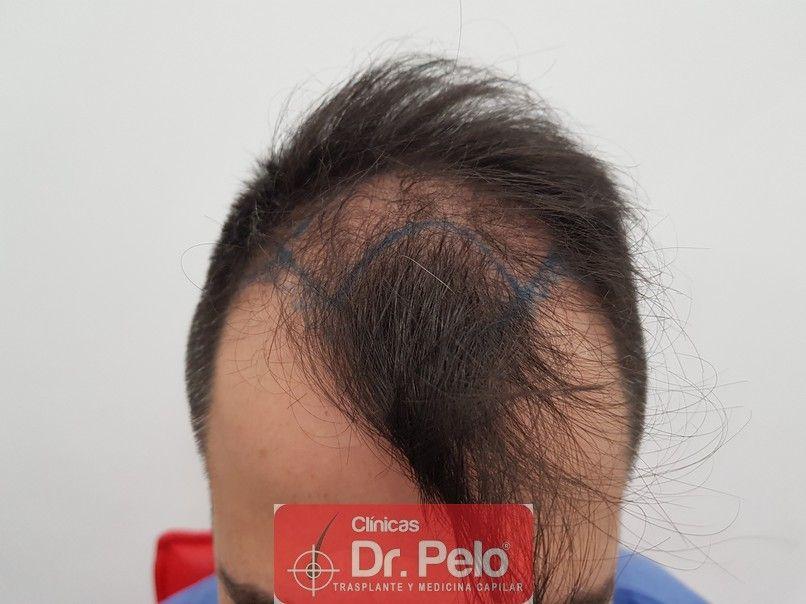 [Imagen: trasplante-capilar-dr-pelo-2.jpg]