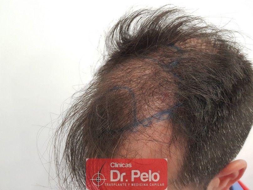 [Imagen: trasplante-capilar-dr-pelo-4.jpg]
