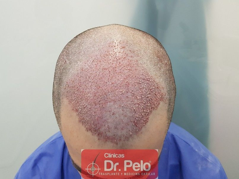 [Imagen: trasplante-capilar-dr-pelo-6.jpg]