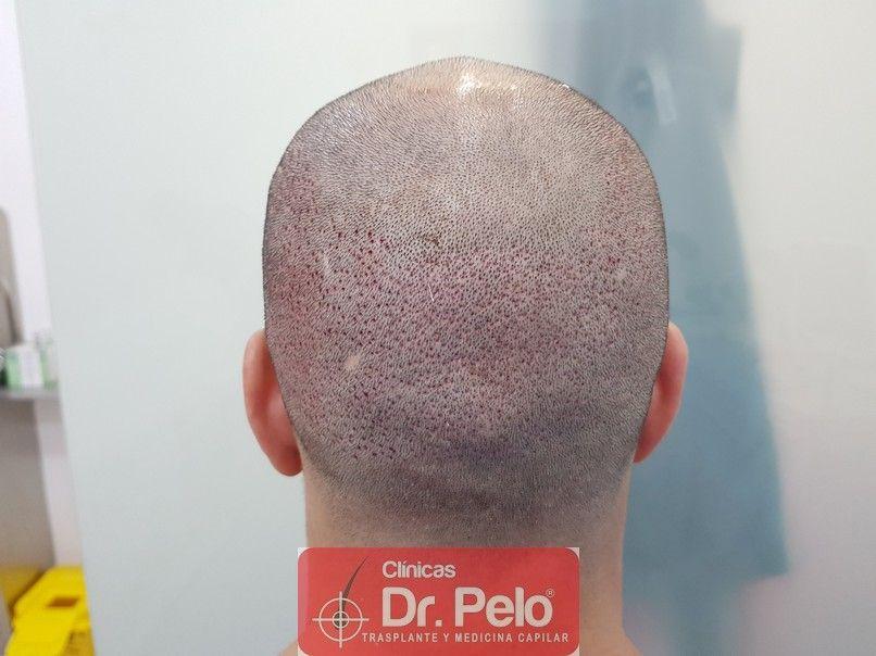 [Imagen: trasplante-capilar-dr-pelo-7.jpg]